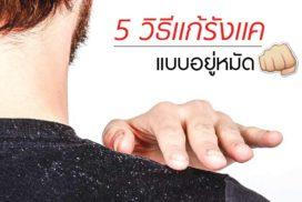 5_วิธีขจัดรังแคอยู่หมัด